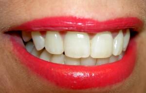 baby boomer teeth whitening trend